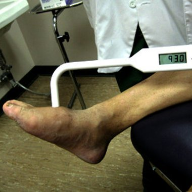 Therapeutic and Diabetic Foot Care